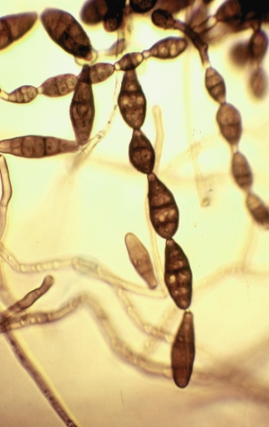 Asexual reproduction fungi conidia alternaria