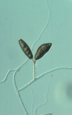 Asexual reproduction fungi conidia alternaria