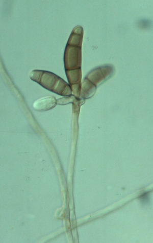 Asexual reproduction fungi conidia definition